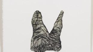 Nicola Ellis, Inadequate arch length, 2012